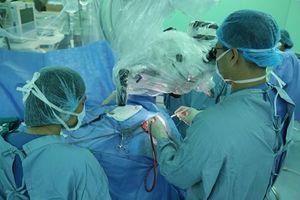 Phẫu thuật lấy ký sinh trùng dài 7cm thành công ra khỏi não người