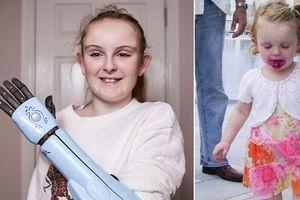 Cô bé 1 tay được tặng cánh tay robot từ người không quen biết