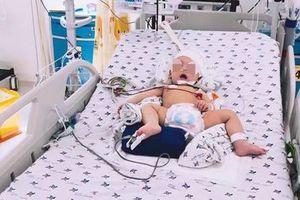 Bé trai 8 tháng bất ngờ bị xuất huyết não, lời cảnh báo đến nhiều cha mẹ