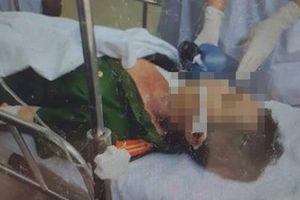 Bình Thuận: Bắt kẻ ngáo đá, Trưởng công an xã bị đâm tử vong