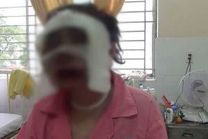 Chuẩn bị đám cưới, cô gái bị tạt axit phỏng nặng vùng mặt