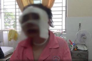 Truy bắt kẻ tạt axit cô gái sắp cưới trên phố Sài Gòn