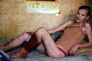 Công bố những hình ảnh ghê rợn của 'xác sống' sau khi nghiện ma túy Krokodil