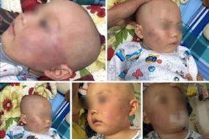 Bé trai 19 tháng tuổi bị bảo mẫu tát sưng mặt