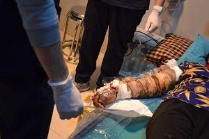 Chữa vết bỏng sai cách, bệnh nhân suýt hoại tử cánh tay, nguy hiểm tính mạng