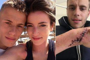 Chàng trai 22 tuổi 'thân tàn ma dại' vì bị bạn gái bạo hành, dội nước sôi lên người