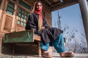 Cô gái trẻ xinh đẹp phải cắt bỏ 8 ngón chân chỉ vì bị muỗi đốt
