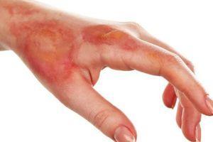 Coi thường vết thương bỏng, nhiều người bị hoại tử, thối thịt vì điều trị sai