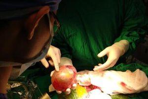 Tp. Hồ Chí Minh phẫu thuật lấy khối u thai cho bé trai 4 tháng tuổi