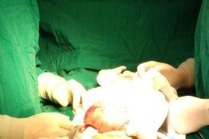 Bé trai 4 tháng tuổi bụng phình to vì 'thai trong thai'