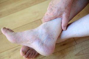 Các dấu hiệu ở chân chứng tỏ bệnh tim mạch