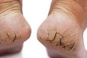Ung thư da từ vết nứt gót chân và những dấu hiệu rất dễ bỏ qua