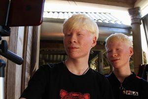 Chuyện về hai anh em bạch tạng và ước mơ trở thành một Youtuber chuyên nghiệp