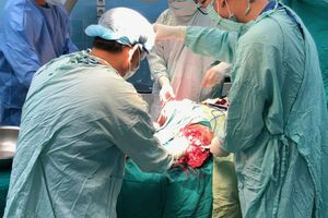 Anh công nhân vào viện kèm 2 chân bị đứt rời