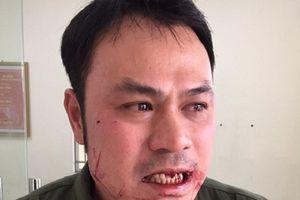 Nhân viên an ninh hàng không bị đánh gãy răng vì ngăn 'cò mồi'