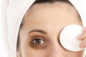 Cách đơn giản trị thâm quầng mắt hiệu quả chỉ bằng 1 quả dưa leo