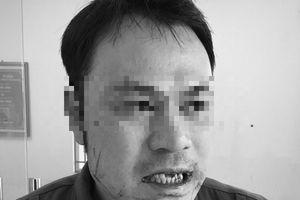 Phó Thủ tướng yêu cầu xử nghiêm vụ hành hung nhân viên an ninh sân bay