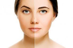 Học ngay 3 cách trị da mặt không đều màu sau một thời gian da sáng mịn trông thấy
