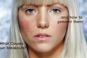 Chọn mua mỹ phẩm nên lưu ý những thành phần có thể gây kích ứng cho da