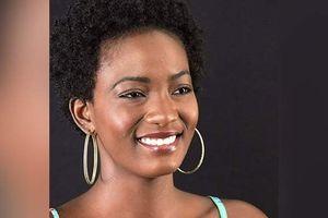 Thí sinh Miss Universe Jamaica qua đời sau 7 năm chiến đấu với bệnh lupus