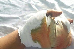 'Nghịch dại' một thanh niên bị pháo nổ giập, nát tay