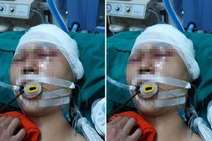 Nam sinh bị nhóm người đánh chấn thương sọ não ở Hà Nội