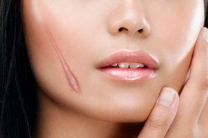Học ngay cách trị sẹo đơn giản hiệu quả tại nhà