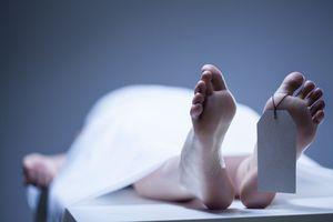 Nga: Xác chết bất ngờ 'động đậy' sau khi đưa vào nhà xác