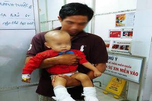 Thương tâm nhiều trẻ em bị tai nạn phỏng gần Tết