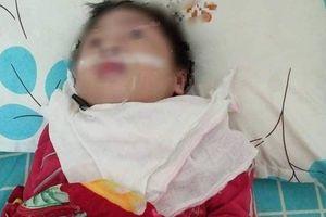 Bệnh nhi bị teo não sau phẫu thuật, người nhà tố bệnh viện tắc trách
