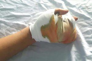 Nghịch pháo tự chế, thiếu niên 15 tuổi bị dập nát bàn tay