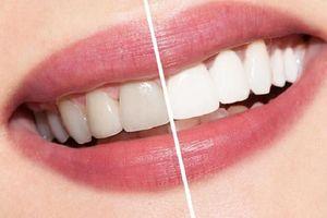 Không thử thì phí: Mẹo trắng răng thơm miệng ngay tại nhà chỉ 1 tuần là thấy kết quả