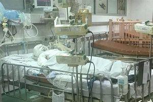 Sức khỏe bé gái bị bỏng 80% cơ thể do bố hút thuốc trong nhà khiến bình gas phát nổ