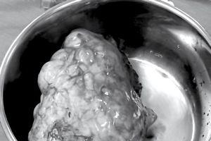 Đau tức ngực, người mệt mỏi, đi khám phát hiện khối u nặng 2kg ở tuyến ức