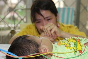 Cục trưởng Cục Y tế dự phòng: Phòng bệnh sởi cách duy nhất là tiêm vắc xin