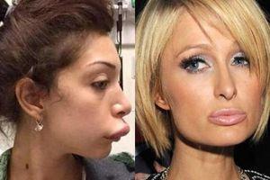 Khi mỹ nhân showbiz bơm môi: Phần lớn luôn biến thành thảm họa, có người còn như hóa trang vịt Donald!