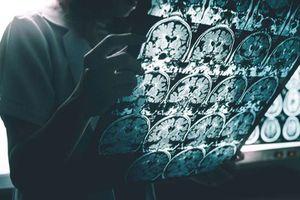 Dấu hiệu sớm của bệnh Alzheimer
