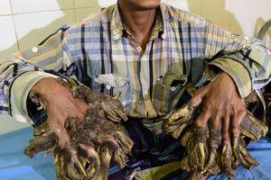 Người cây Bangladesh tiếp tục trải qua phẫu thuật
