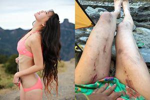 'Người đẹp 2 mảnh' tử nạn sau 28 giờ mặc kẹt vì mặc bikini leo núi
