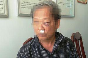 Danh tính hai đối tượng hành hung dã man phóng viên VTV