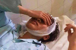 Bắt 4 kẻ côn đồ chém 6 người nhập viện ở Lâm Đồng