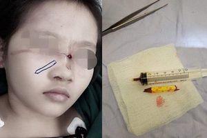 Cầm bút chì chơi rồi vấp ngã, bé gái 6 tuổi bị đâm xuyên từ mũi đến hốc mắt