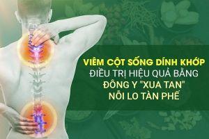 Viêm cột sống dính khớp và cách điều trị loại bỏ nguy cơ tàn phế