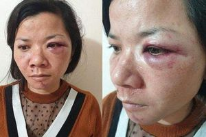 Nam Định: Vợ bị chồng đánh đập dã man vào tối mùng 2 Tết?
