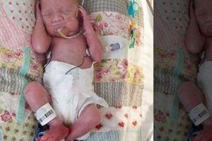 Vào viện mổ vì nhiễm trùng, không ngờ bác sĩ lấy ra hẳn một đứa trẻ trong bụng