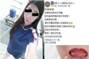 Cô gái đau khổ chia sẻ chuyện mất răng trong một tháng