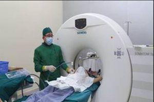 Điều trị ung thư thông qua đốt u phổi bằng vi sóng