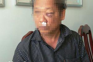 Phóng viên VTV bị đánh thương tích 7%, có khởi tố vụ án?