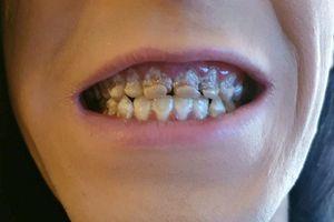 Chàng trai bị mục nát hàm răng vì lý do nhiều người dễ mắc