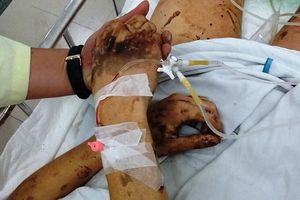 Những vụ trả thù bằng axit - hành vi tàn độc không thể dung tha